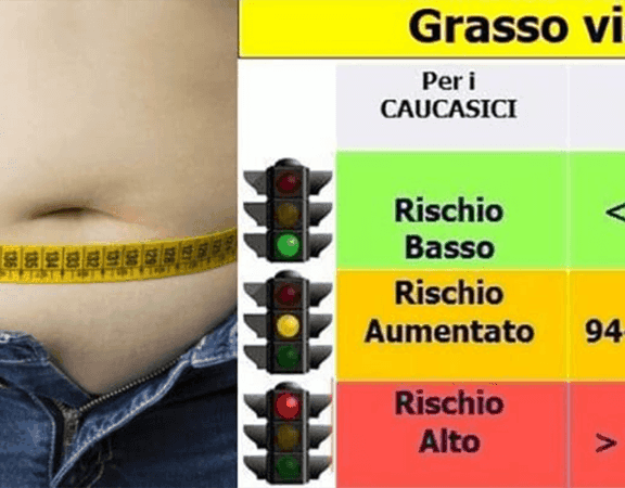 SINDROME METABOLICA GRASSO VISCERALE